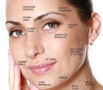 skin, advice, smoking, uk, leeds, botox, filler, beauty, treatment